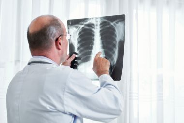 rebounding health benefits lung x ray